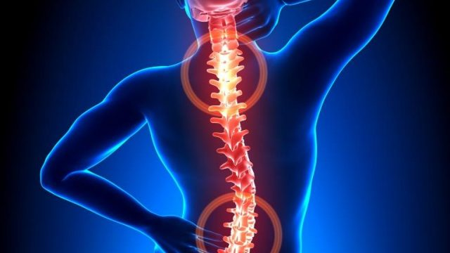 Cervicobrachialgia e lombosciatalgia
