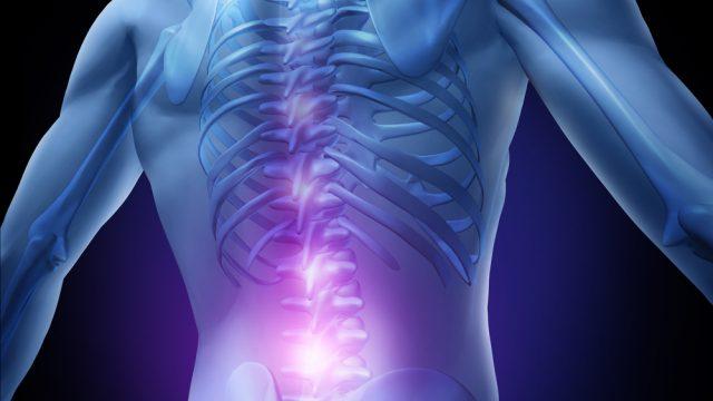 Sindrome delle  faccette  articolari – sindrome  faccettale